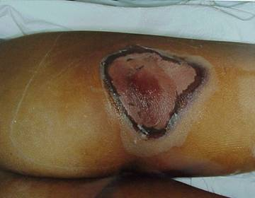 Photo of a human leg damaged by radiation in later stages